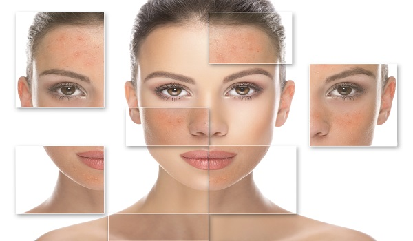 cosmetic dermatology treatment in Delhi