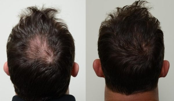 PRP hair treatment in Delhi