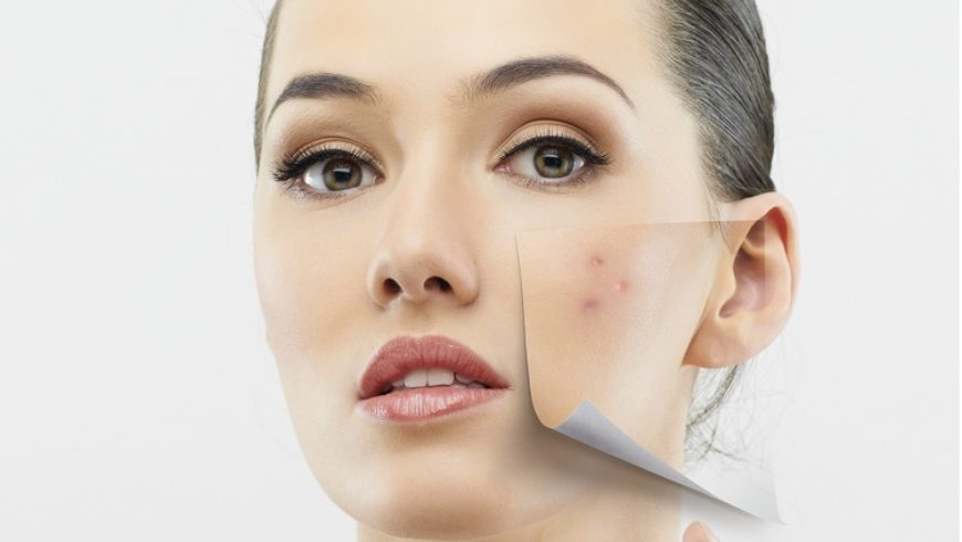 Why Acne return and What to do to stop the Acne cycle?