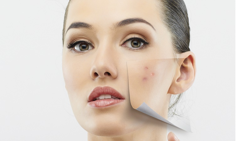 why acne return and how to stop acne cycle